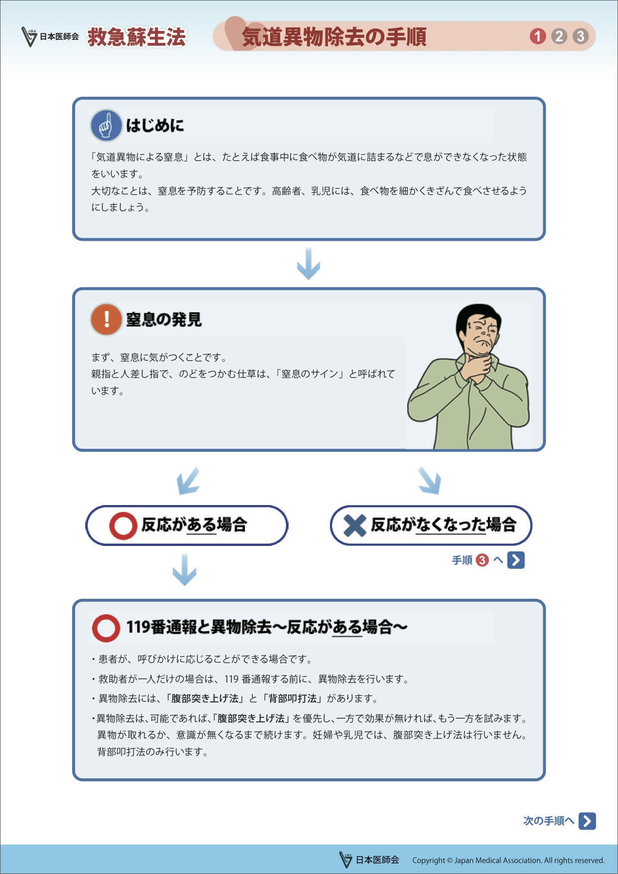 気道異物除去の手順